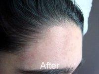 Electrolysis for Dark Skin | Electrologists' Association of